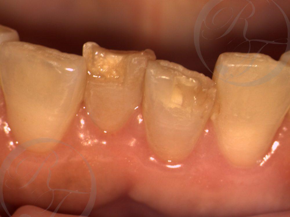 歯のすり減り