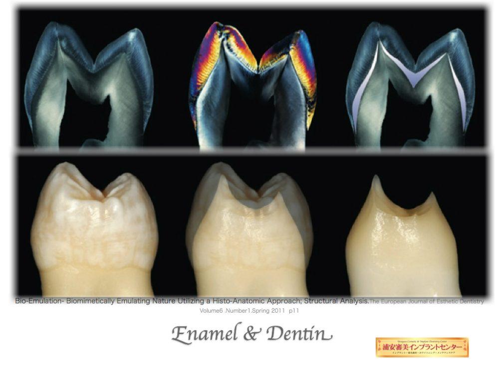 セラミック 歯