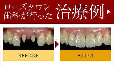 ローズタウン歯科クリニックが行った治療例(ビフォー・アフター)