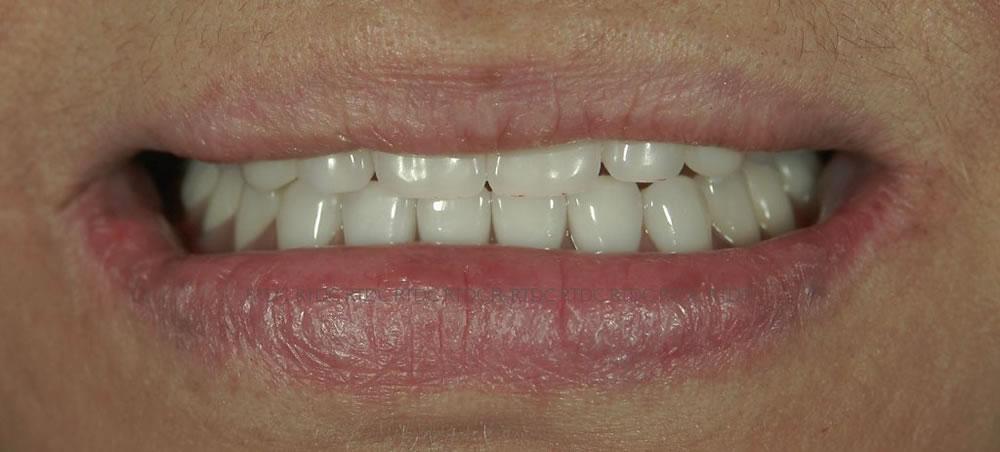 入れ歯治療後の口元