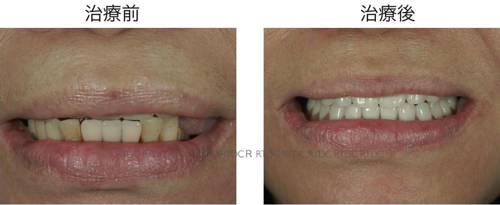 入れ歯治療比較