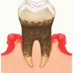 歯周病(マイクロペリオ)