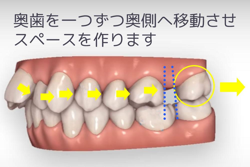 歯の遠心移動の仕組み