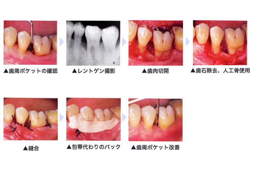 歯周外科・歯周再生療法
