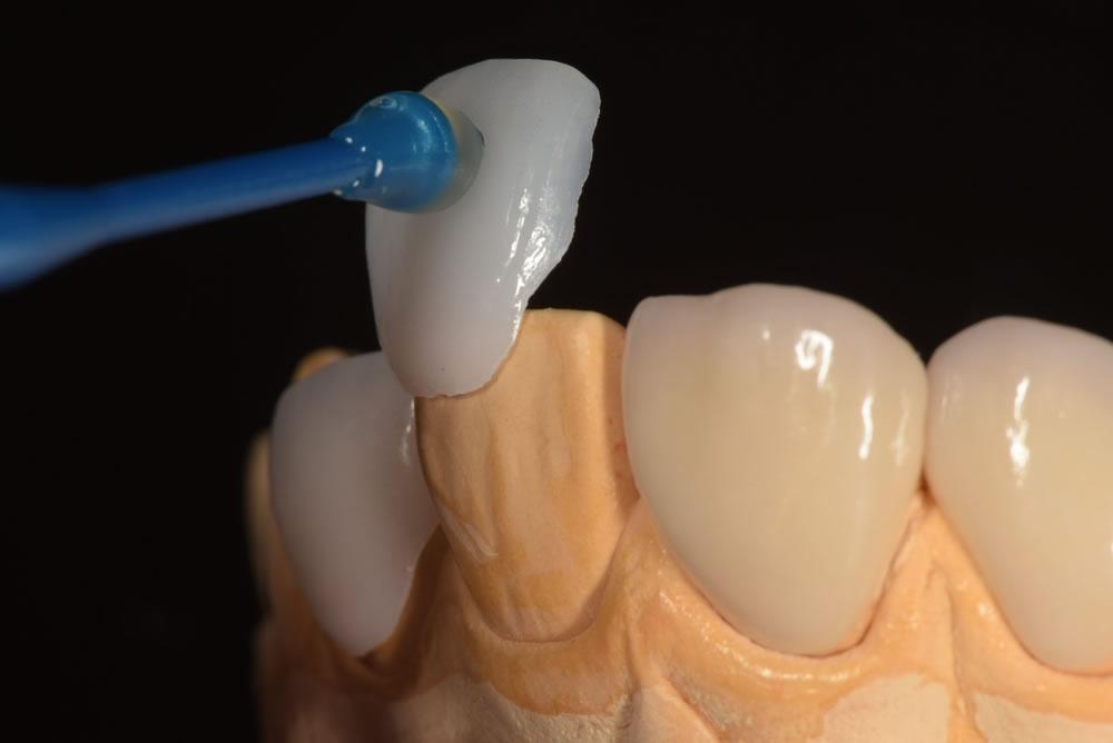 歯を削らないラミネートベニア「スーパーエナメル療法」
