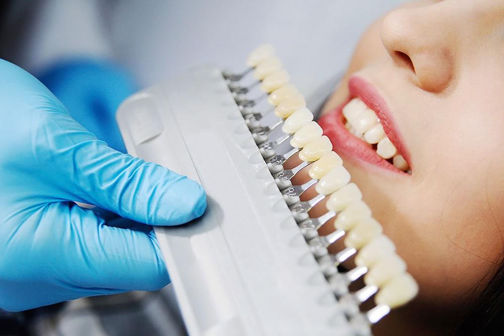 色の決定・歯型の採取